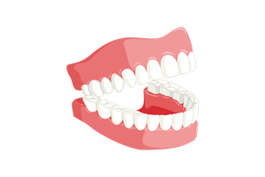 Типове Dental Implants 15