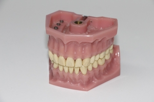 Вижте Dental Implants 6