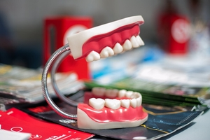 Best Deals on Smile Design 22